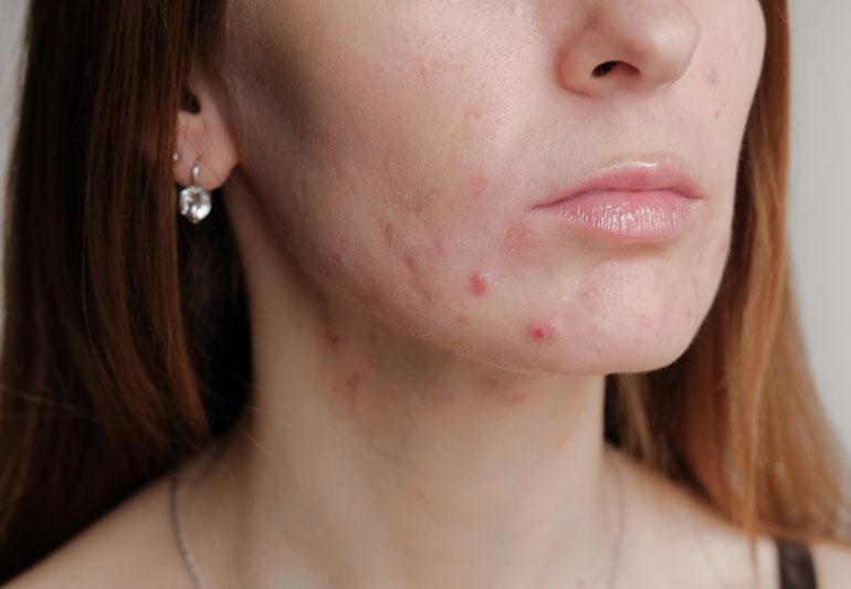 Pimple Problem